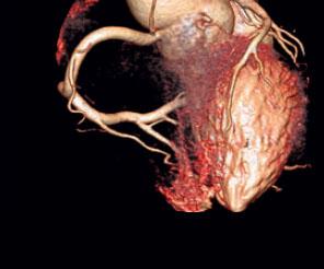 Düşük doz ile kalp teşhisleri